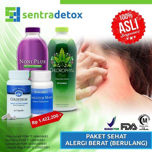 Alergi Berat